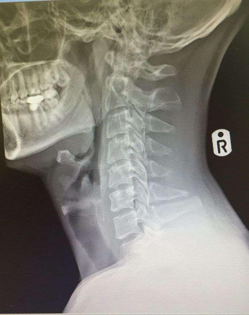 Unidad-espalada-radiografia-810x1024.jpg